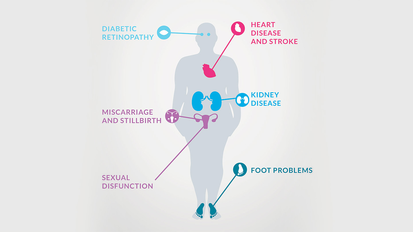 Early diagnosis & diet can increase reversal rates of type 2 diabetes